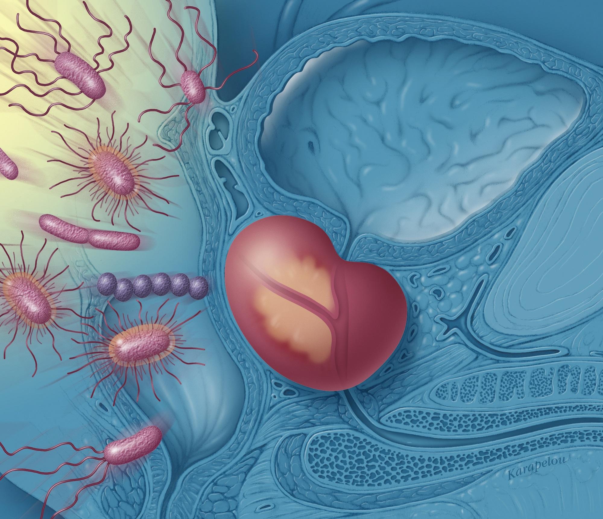 intestinele în timpul erecției de ce bărbații fac erecții dimineața