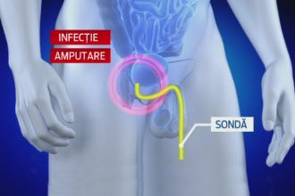 masaj penis pentru soț kegel pentru erecție