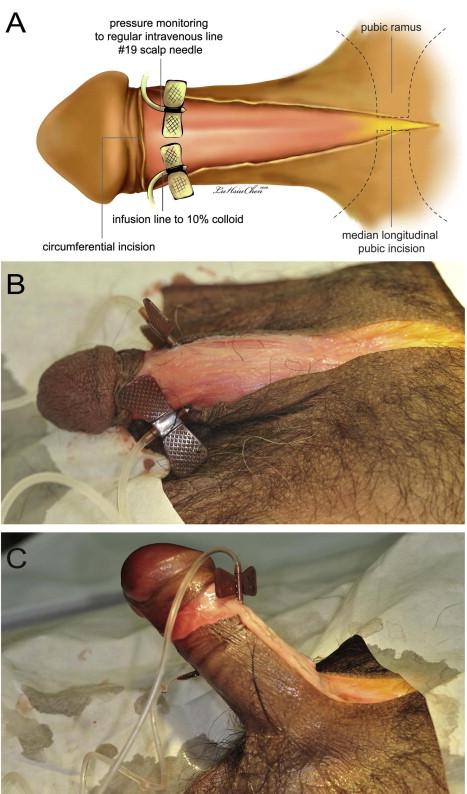 formalin penis erecția dispare după primul act sexual