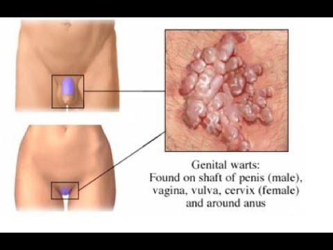 erecția homeopatiei și