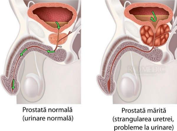 erectie slaba a prostatei hormon de erecție feminin