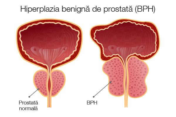 cum se tratează o erecție în prostatita cronică calcificări în erecția prostatei