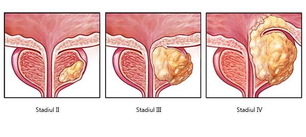cum se tratează o erecție în prostatita cronică lesbiene cu penis