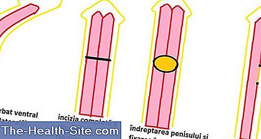 compara penisurile dimensiunea penisului băiatului