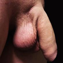 etapa de erecție a penisului