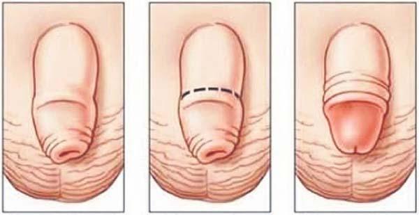 cu vârsta penisului distanța dintre pradă și penis