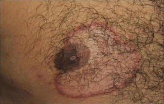Afte cauzate de infecţia cu Candida la bărbaţi: cum se manifestă, cum pot fi prevenite