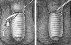 cum se tratează un penis învinețit