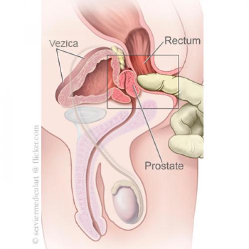 prostatită și erecții nocturne ce trebuie să mănânci pentru a menține o erecție