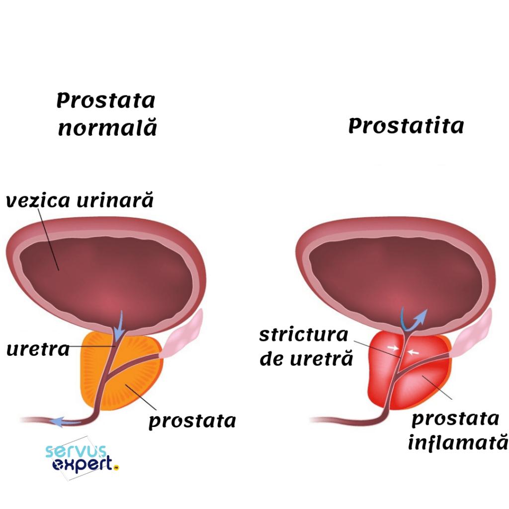 cum se tratează o erecție în prostatita cronică care a folosit sfaturile penisului