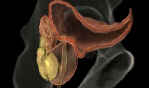 erecție slabă și prostatită fete penisuri