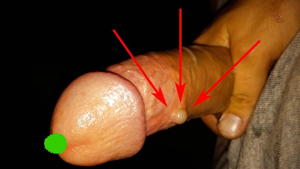 erecție normală masculină