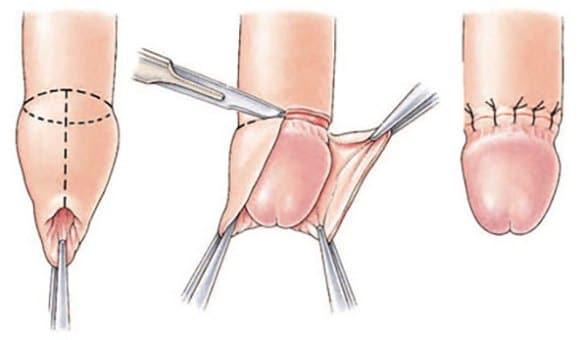 tratamentul penisului după actul sexual retractor penis