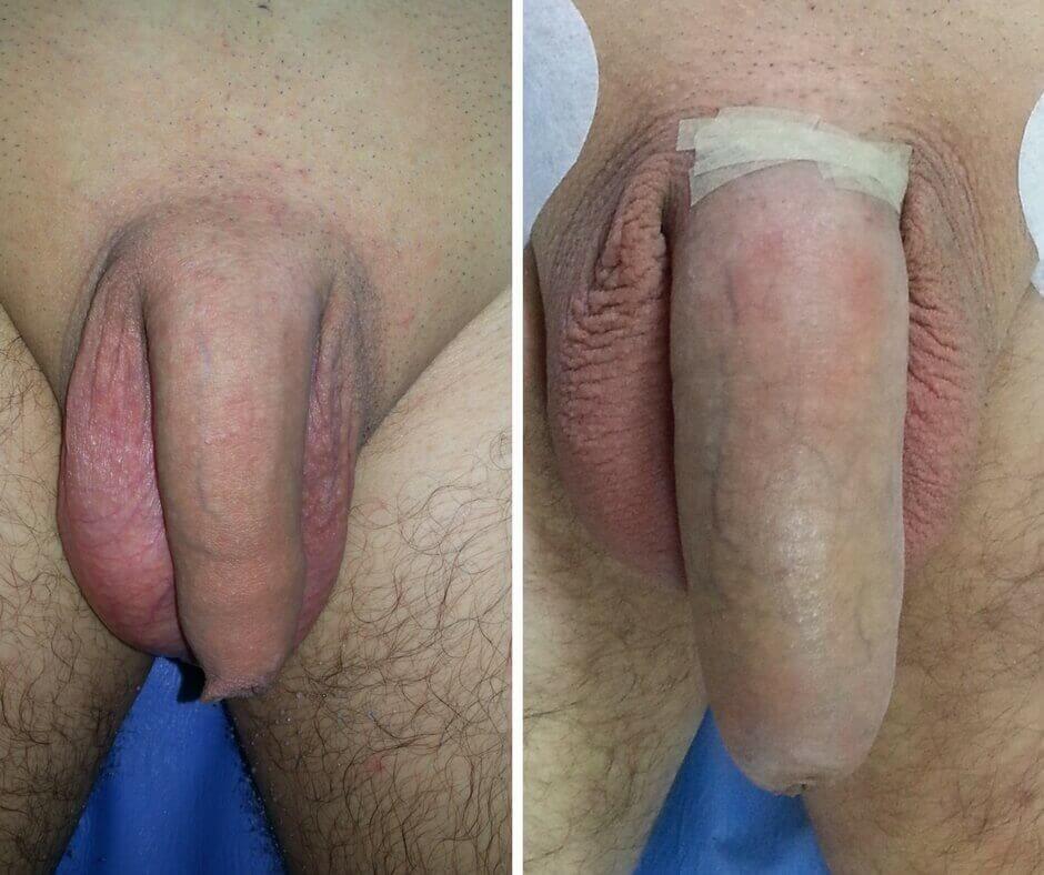 penis cu titluri